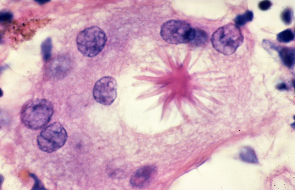 Sarcoidosis_-_Asteroid_body